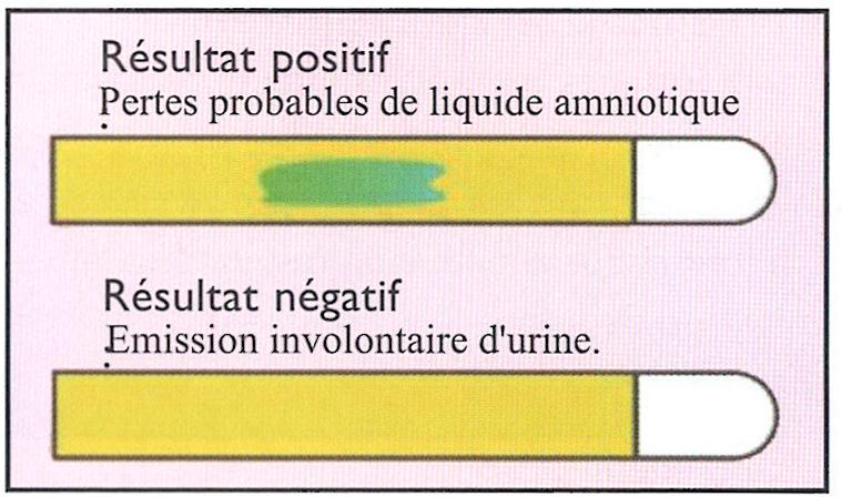 Résultat du test Amniodetect